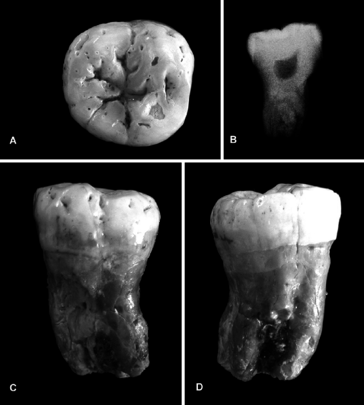 LKH-1-a-Neanderthal-left-M-3-A-occlusal-view-B-radiograph-of-lateral-view-C.png