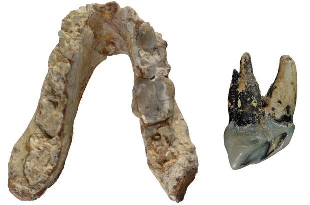 Tooth-and-jaw