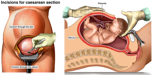 Cesarean Delivery